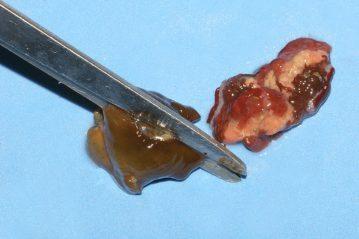 Sea Anemone Baits cut in half