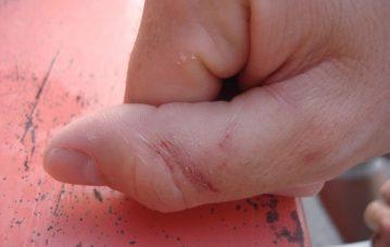 a thumb chomped by a tarpon